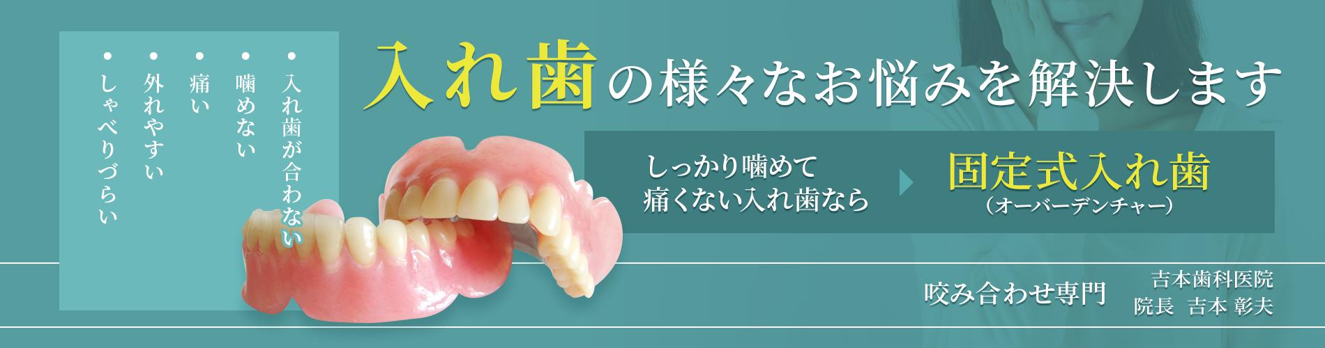 よく噛めて安定する総入れ歯なら固定式入れ歯インプラントオーバーデンチャー 香川県の吉本歯科医院
